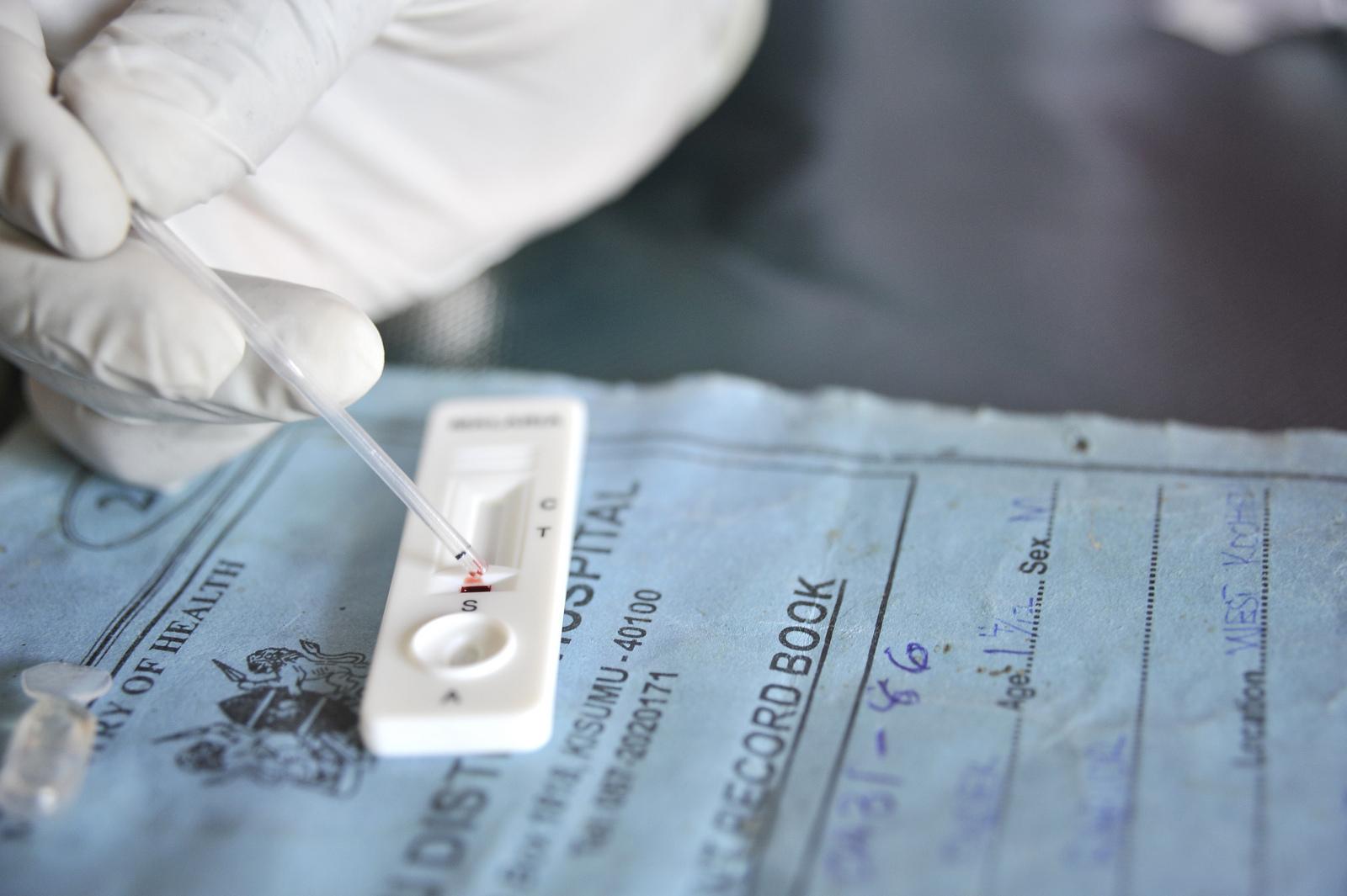 Snellere diagnoses met behulp van een RDT
